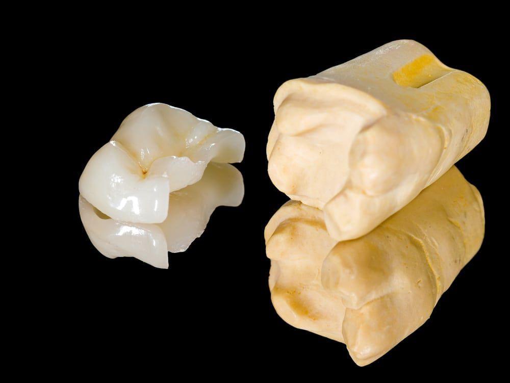 inlays and onlays dental closeups