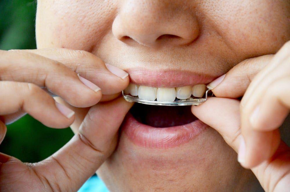 nightguard closeup teeth